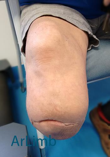 medical conditions  stump changes  u2013 artlimb