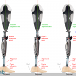 TF_Prosthesis_Knee_alignment